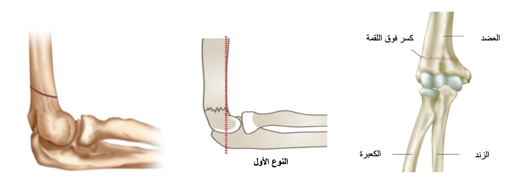 fracture image